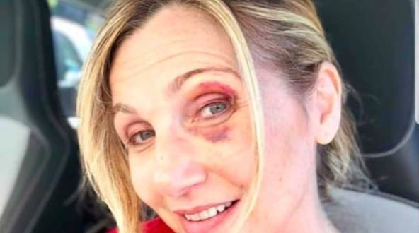 """Lorella Cuccarini ha un occhio nero: """"Colpa di una buca"""""""